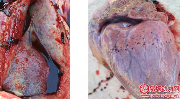 fibrinous-pleurisy-pericarditis-and-petechial-hemorrhage-on-heart_127919.jpg